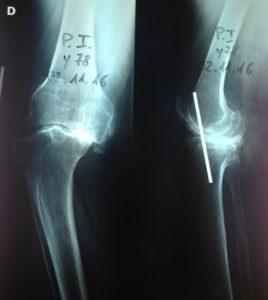 Grave deformità artrosica
