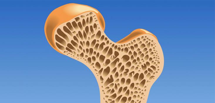 Prevenzione osteoporosi